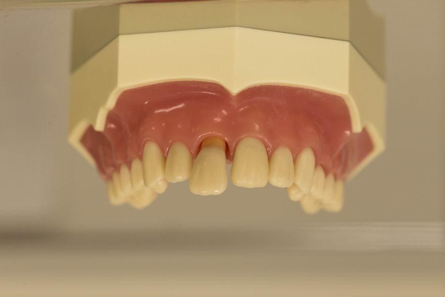 歯周病の治療のセミナーに行ってきました